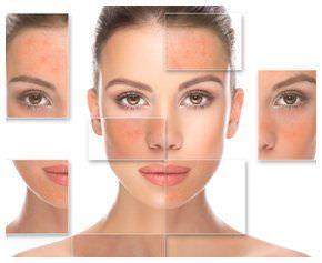 5 Remedios caseros para mejorar el tono de piel